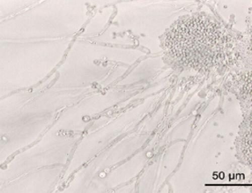 Quel microbe est la cause d'une mycose vaginale?