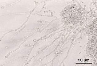 Quel microbe est la cause d'une mycose vaginale ?